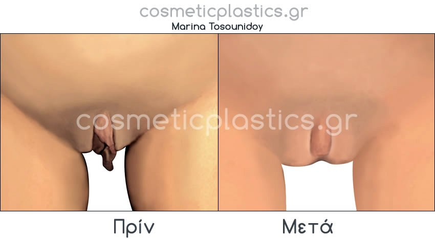 plastiki-klitoridas 1