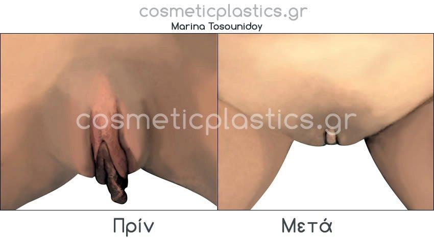 plastiki-klitoridas 2
