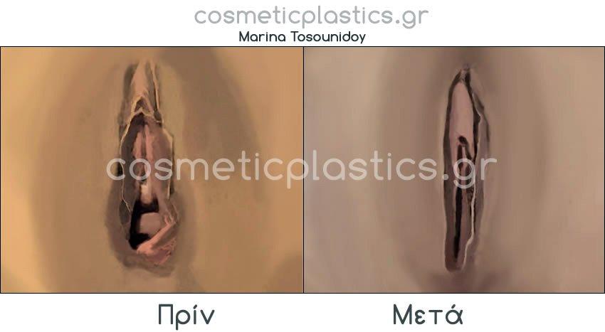 plastiki-kolpou1